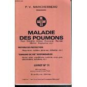 Maladie Des Poumons (Toux - Bronchite - Asthme - Pneumologie - Pleuresie - Oedeme - Emphyseme Etc...) - Moyens De Protection - Erreurs De Vie Responsables - Livret 11. de MARCHESSEAU P.V.