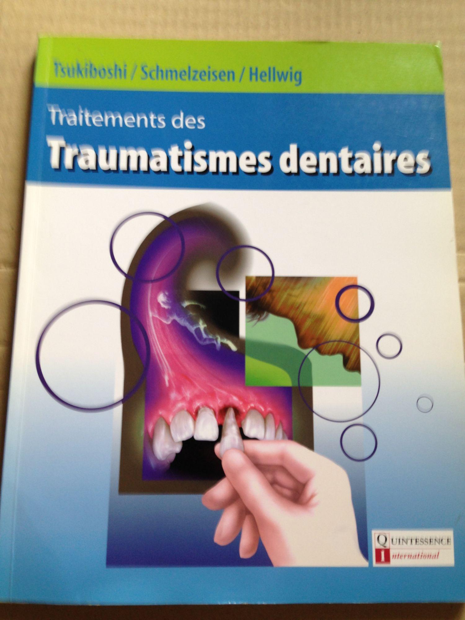 Traitement des traumatismes dentaires