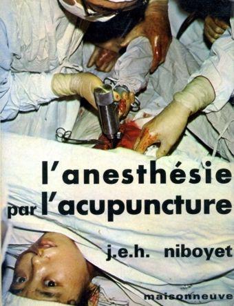 L'anesthésie par l'acupuncture