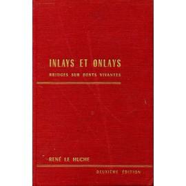 Inlays Et Onlays de Ren� Le Huche
